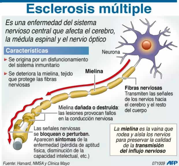 enfermedad esclerosis multiple