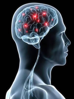 esclerosis multiple sistema nervioso